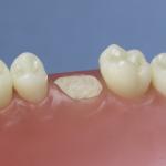 Dentes Diferenciados 139